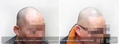 Scalp MicroPigmentation (89/114)