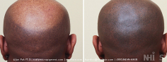 Scalp MicroPigmentation (90/114)