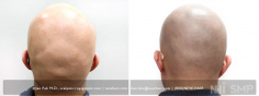 Scalp MicroPigmentation (91/114)