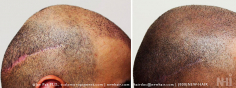 Scalp MicroPigmentation (92/114)