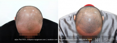 Scalp MicroPigmentation (93/114)