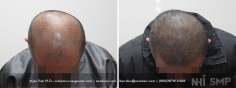 Scalp MicroPigmentation (94/114)