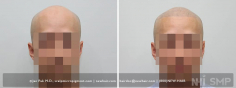 Scalp MicroPigmentation (95/114)