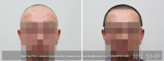 Scalp MicroPigmentation (97/114)