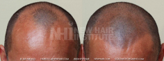 Scalp MicroPigmentation (100/114)