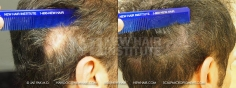 Scalp MicroPigmentation (109/114)