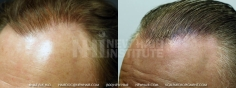 Scalp MicroPigmentation (110/114)