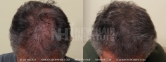 Scalp MicroPigmentation (111/114)
